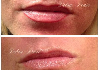 Lipliner - Immediately After and Healed